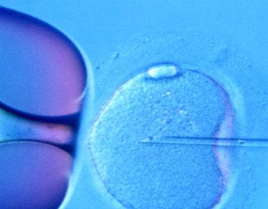 Tüp Bebek - IVF